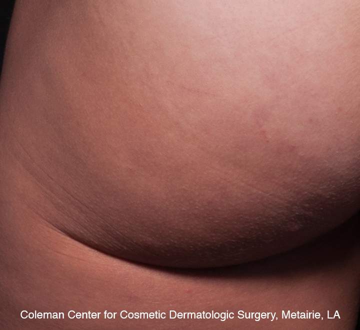 photo of cellulite, 3 years after Cellfina
