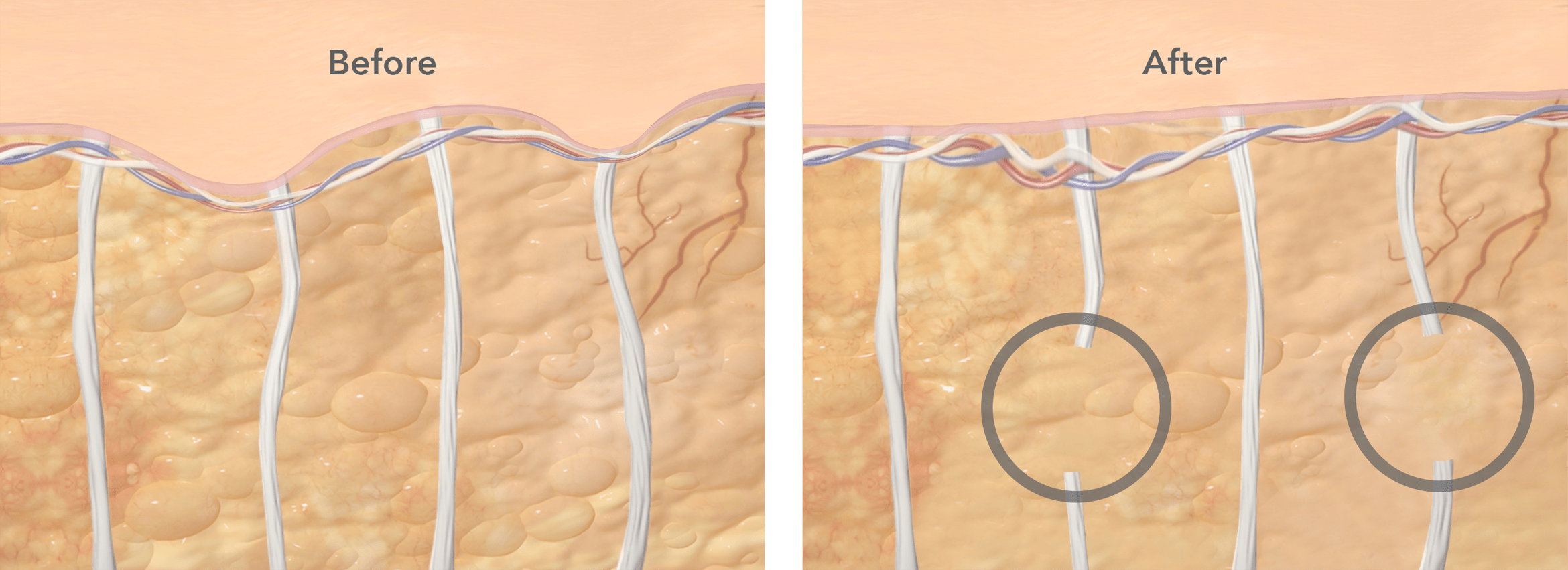 Before and After cross-section